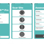 ClinMAPS app launched to help better assess and treat burn scars