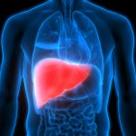 The $35 billion race to cure a liver disease that affects 30 million Americans