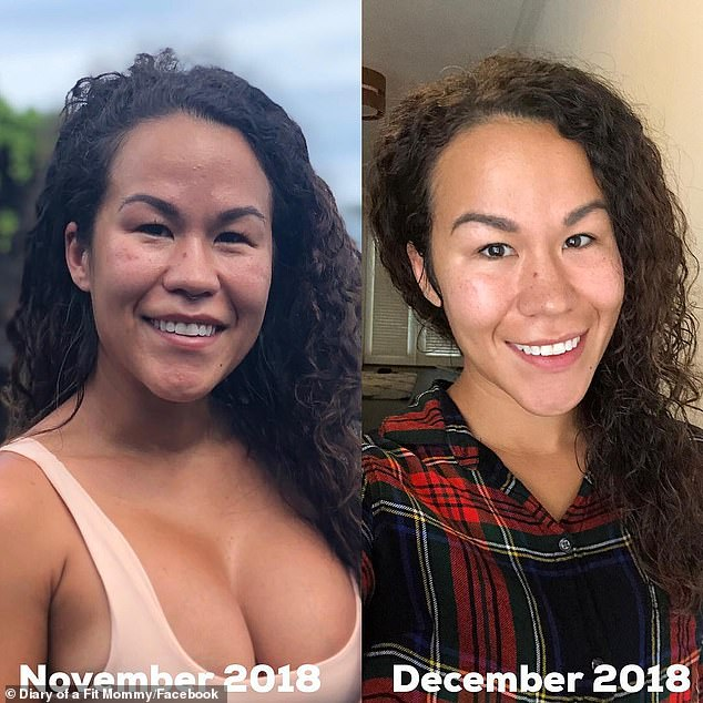 In addition, she experienced rashes on her face and back. Left is before her explant surgery to remove the silicone gel implants and right is after explant surgery
