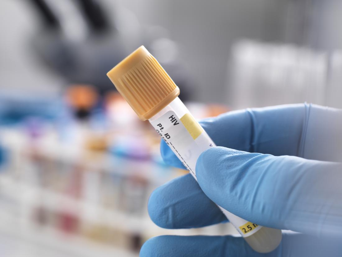 hiv testing in a lab for hiv 1 and hiv 2