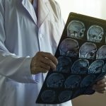 Medical News Today: What to know about ventriculoperitoneal shunt