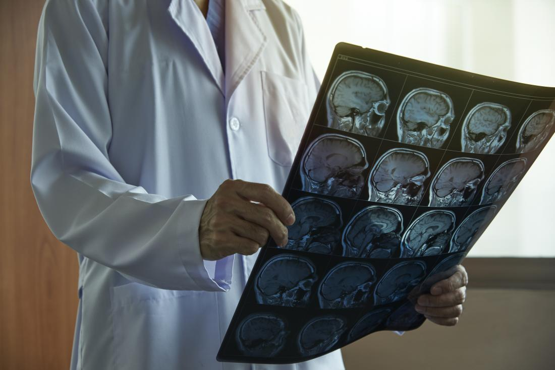 Neurologist looking at brain scans to decide if to use a ventriculoperitoneal shunt