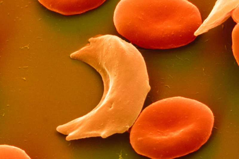 Round and sickle shaped red blood cells