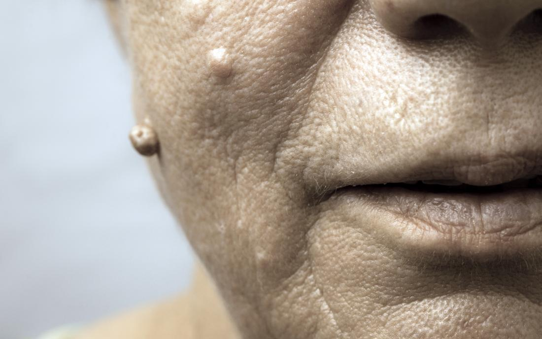 a close up of the warts on a womans face.