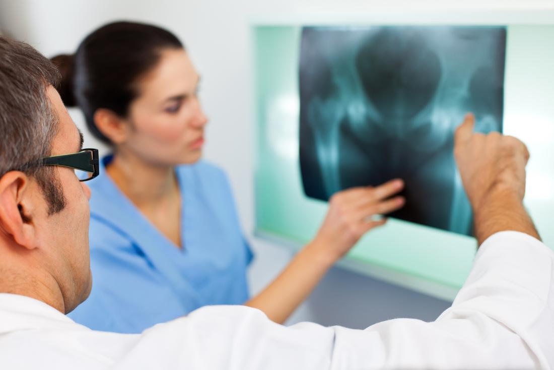Doctors examining hip X-ray