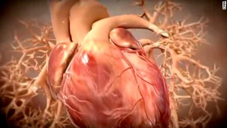 What are heart failure, heart attack and cardiac arrest?